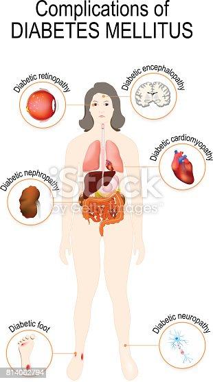 Diabetes mellitus – Zuckerkrankheit