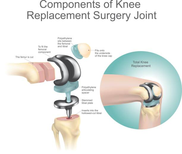 Components of knee replacement surgery joint vector art illustration