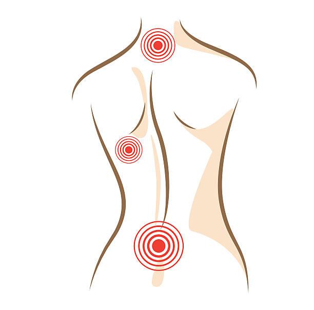 ilustrações de stock, clip art, desenhos animados e ícones de conceito de vetor esboços mulher de dor nas costas - tronco nu