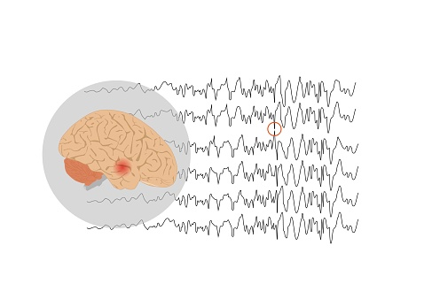Concepts of temporal lobe epilepsy