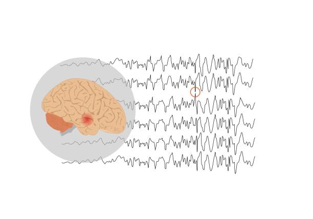 Concepts of temporal lobe epilepsy Vector illustration of human brain and abnormal brain waves waves representing focal seizure at temporal lobe temporal lobe stock illustrations