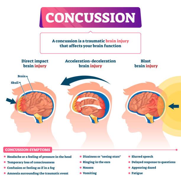 Concussion vector illustration. Labeled educational post head trauma scheme vector art illustration