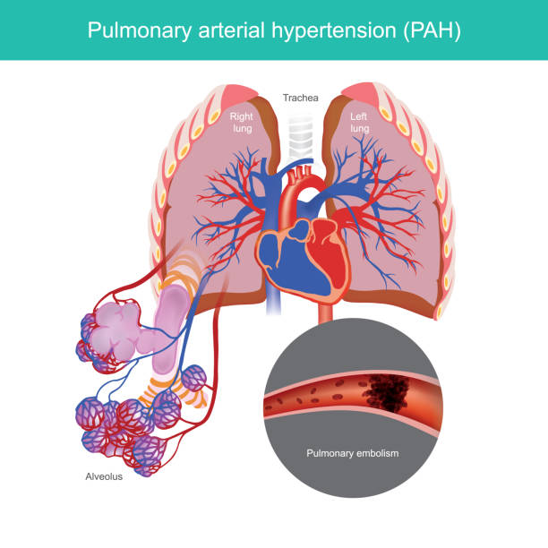 Condition of high blood pressure in the arteries that go from your heart to your lungs. vector art illustration