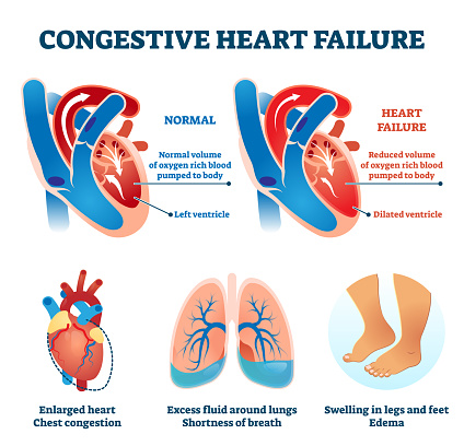 Congestive heart failure vector illustration. Labeled medical compare scheme
