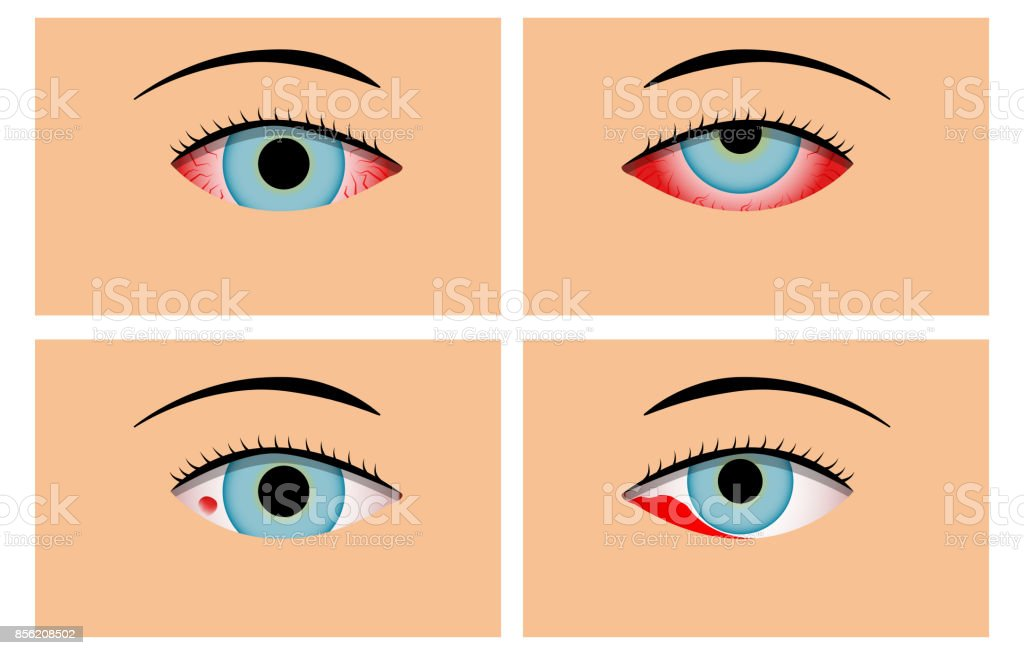 Conjunctivitis and Red Bloodshot Eyes, vector vector art illustration