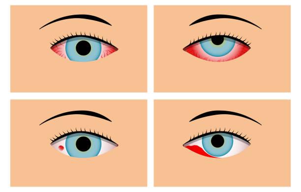 Conjunctivitis and Red Bloodshot Eyes, vector vector art illustration