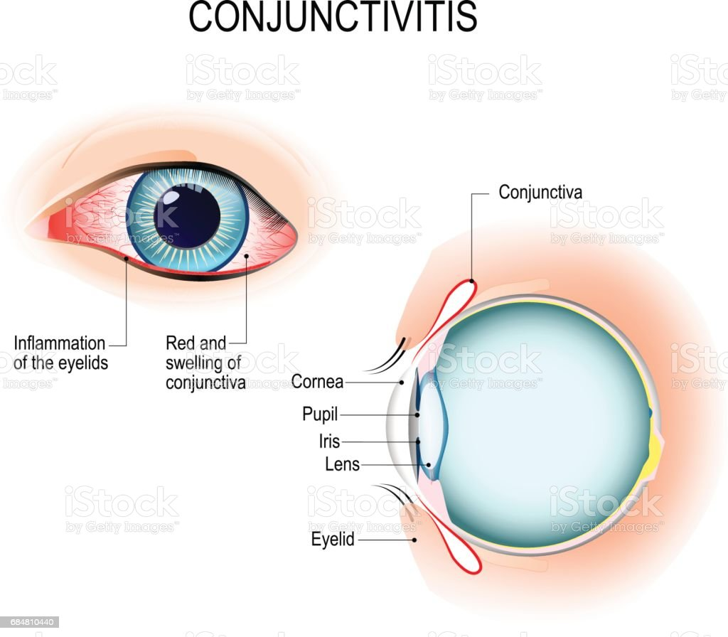 Conjunctivitis. External View and Vertical section of the human eyes vector art illustration