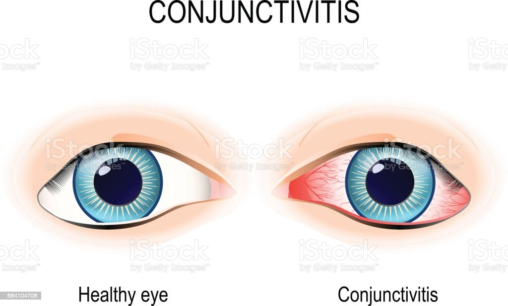 Conjunctivitis vector art illustration
