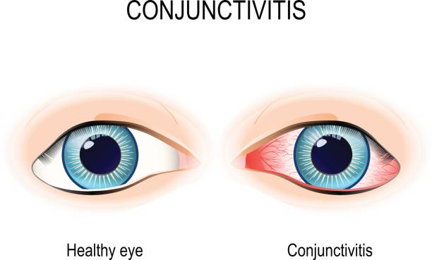 Conjunctivitis vector art illustration
