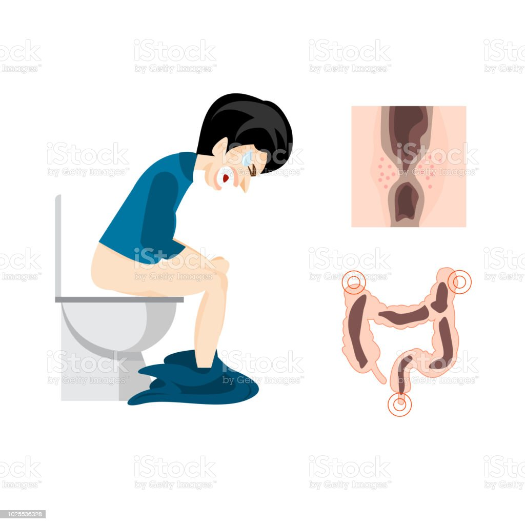 Förstoppning Symptom I En Man Och Bajs I Tarmen Vektor Vektorgrafik