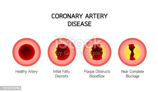 Artery disease. Vector illustration isolated on black background.