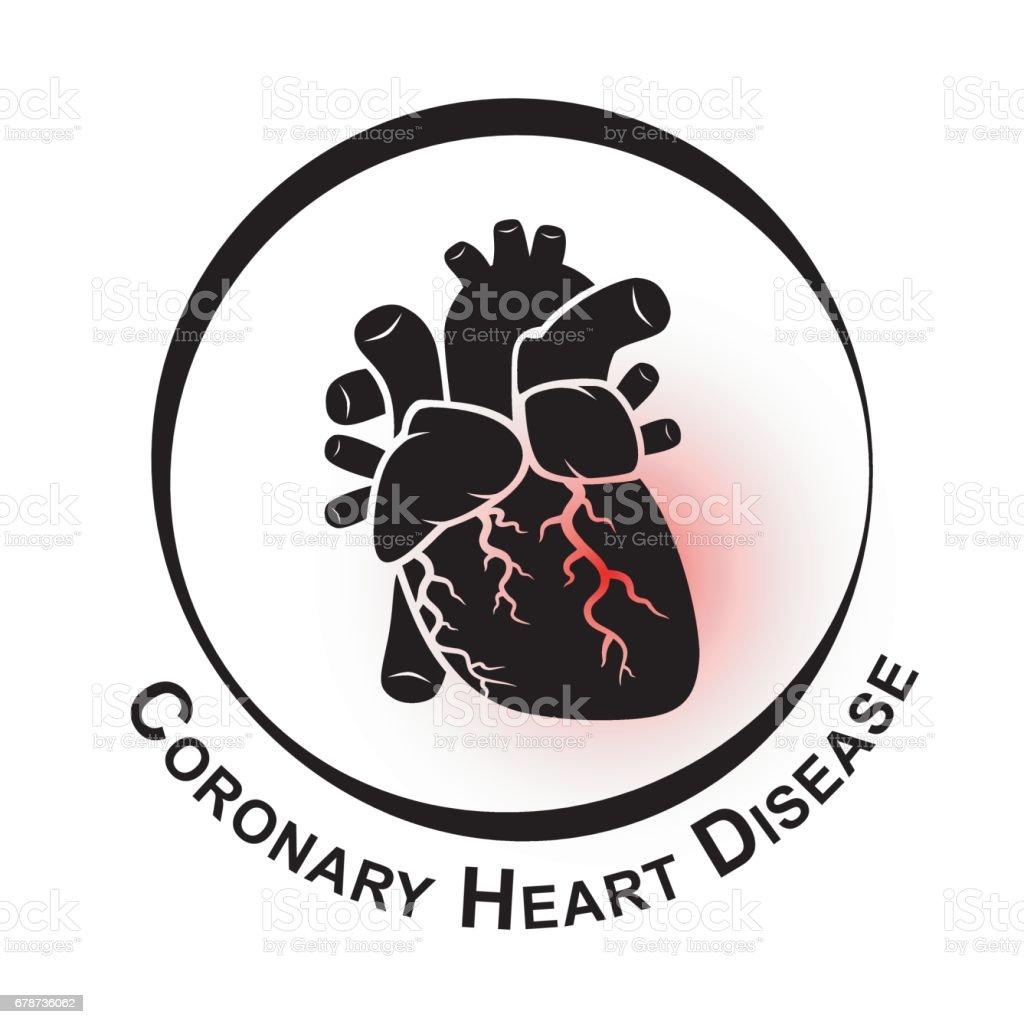 Koronare Herzkrankheit Symbol Stock Vektor Art und mehr Bilder von ...