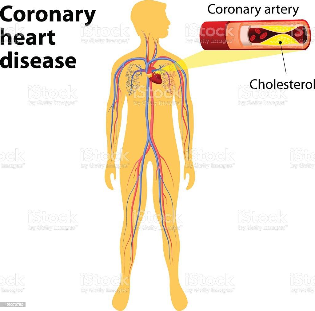 Ilustración de Cardiopatía Coronaria y más banco de imágenes de 2015 ...
