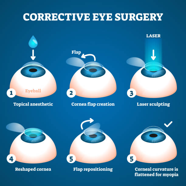 Corrective eye surgery vector illustration. Laser process education scheme. vector art illustration