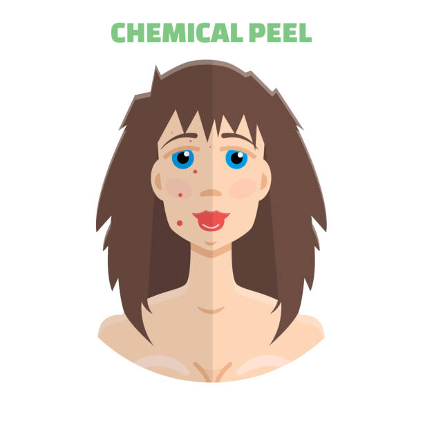 cosmetic peeling. chemical peeling before & after - mikrodermabrasion stock-grafiken, -clipart, -cartoons und -symbole