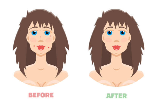 cosmetic peeling. laser peeling before & after - mikrodermabrasion stock-grafiken, -clipart, -cartoons und -symbole