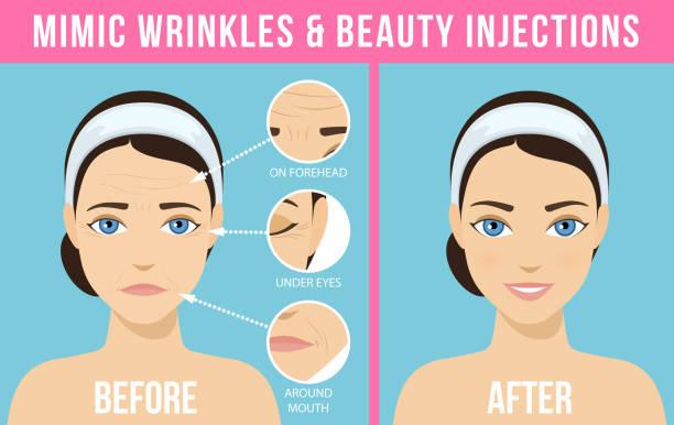 ilustrações, clipart, desenhos animados e ícones de procedimentos cosméticos botox - tratamentos de beleza