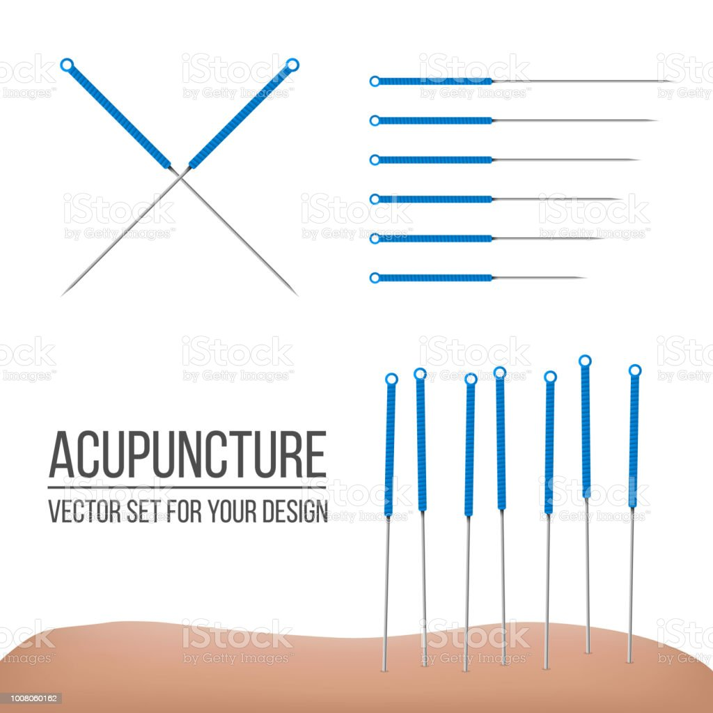 Creative vector illustration of acupuncture therapy isolated on transparent background. Art design spa treatments. Abstract concept graphic element vector art illustration