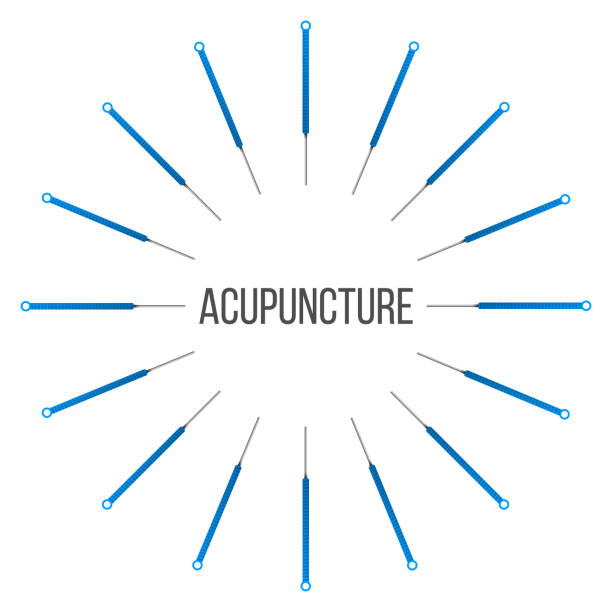 bildbanksillustrationer, clip art samt tecknat material och ikoner med kreativa vektorillustration av akupunktur terapi isolerad på transparent bakgrund. konst design spa-behandlingar. abstrakt begrepp grafiskt element - acupuncture