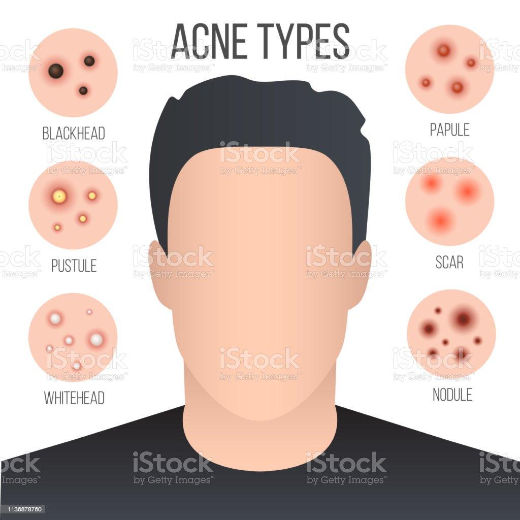 creative vector illustration types of acne, pimples, skin pores, blackhead,  whitehead,