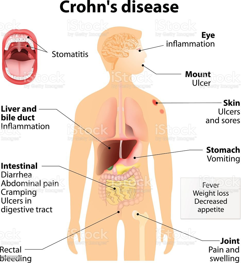 human disease and sign and symptoms