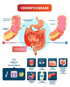 Crohns disease vector illustration. Labeled diagram with diagnosis and symptoms. Infographic with autoimmune disorder and healthy intestine. Structure with gastrointestinal tract.