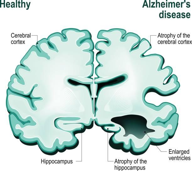 ilustrações de stock, clip art, desenhos animados e ícones de cross section of the human brain. healthy brain compared to alzheimer's disease - alzheimer
