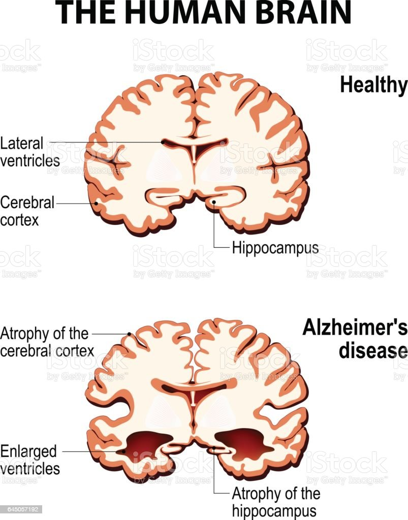 Crosssection Of The Human Brain With Alzheimers Disease Stock Vector ...