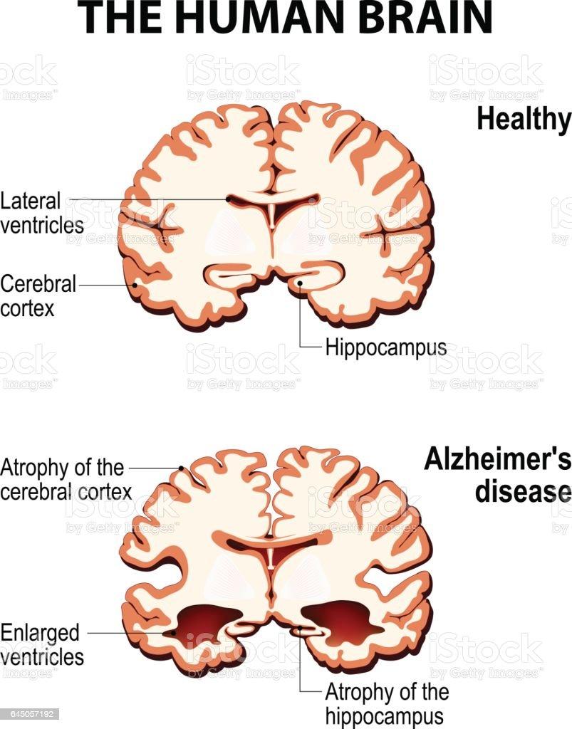 Coupe transversale du cerveau humain avec la maladie d'Alzheimer - Illustration vectorielle