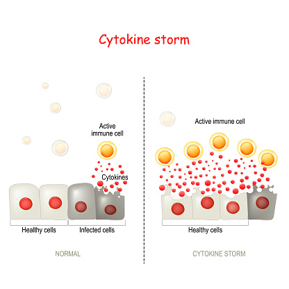 cytokine storm or hypercytokinemia. COVID-19 complications. physiological reaction in which the innate immune system causes an uncontrolled and excessive release of pro-inflammatory signaling molecules (cytokines). Difference and comparison of healthy immune response and cytokine storm