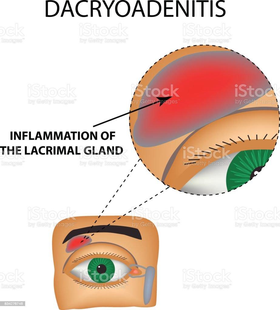 Ilustración de Dacryoadenitis Inflamación De La Glándula Lacrimal La ...