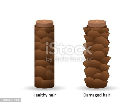 istock Damaged and healthy hair under microscope. Brown keratinous scaly structure with dermatitis and alopecia areata. 1300007908