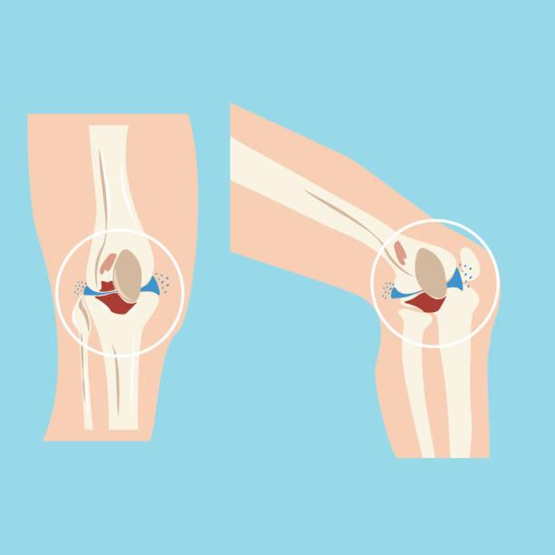 damaged human knee joint set design vector - ludzka noga stock illustrations