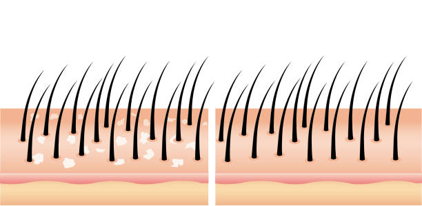 Dandruff on hair before and after (vector),hair scalp. vector art illustration