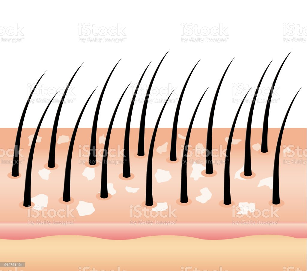 Dandruff on hair (vector),hair scalp. vector art illustration