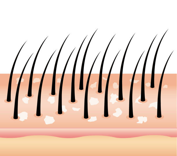 Dandruff on hair (vector),hair scalp. vector art illustration
