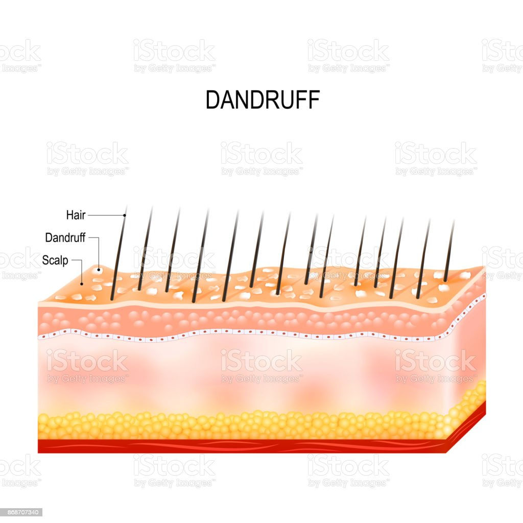 Dandruff on hair scalp. Disorders of the scalp vector art illustration