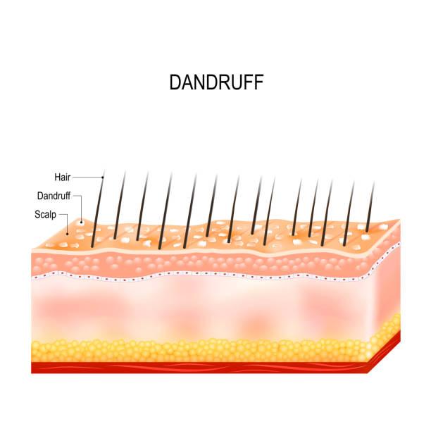 Dandruff on hair scalp. Disorders of the scalp vector art illustration