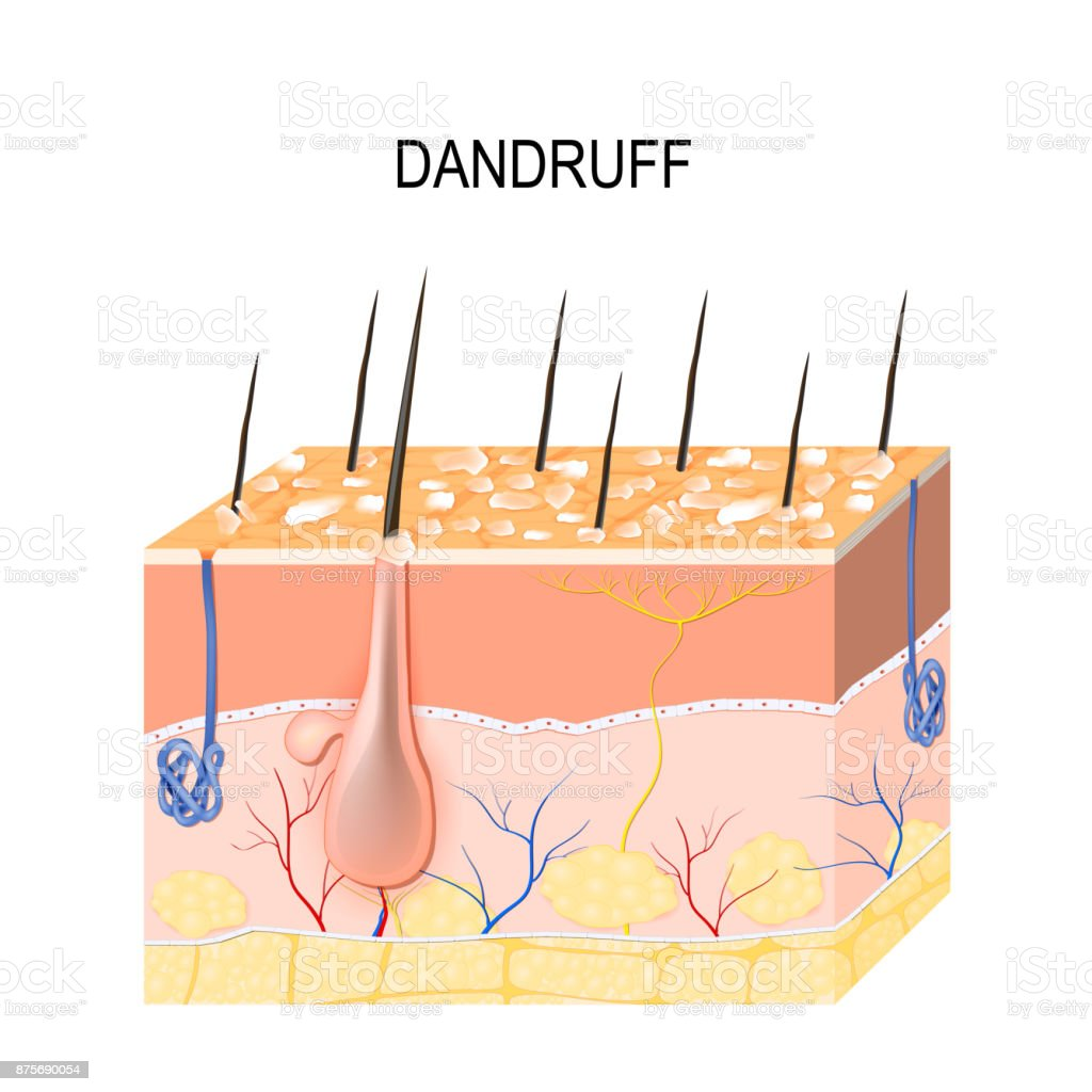 Dandruff. seborrheic dermatitis vector art illustration