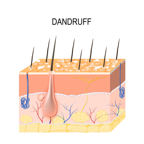 dandruff  seborrheic dermatitis vector art illustration