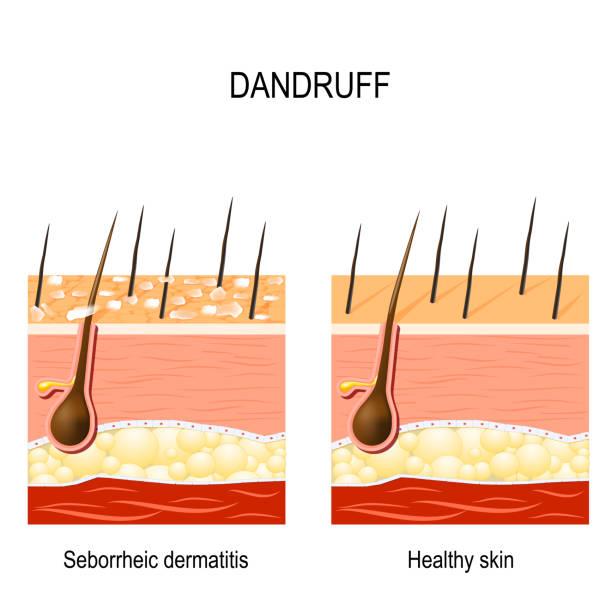 Dandruff. seborrheic dermatitis vector art illustration