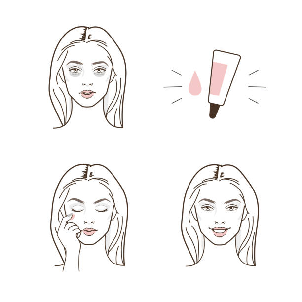 dark circles eyes Woman have dark circles eyes problem.  Vector isolated illustrations set. tired woman stock illustrations