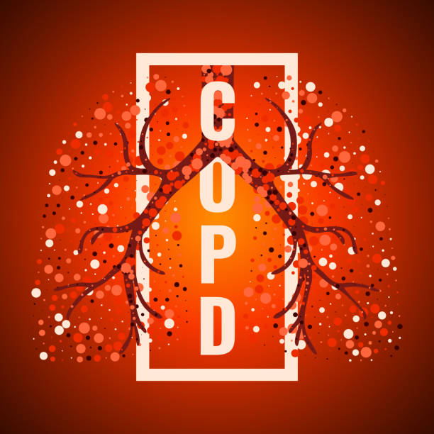 Best Copd Illustrations, Royalty-Free Vector Graphics & Clip Art