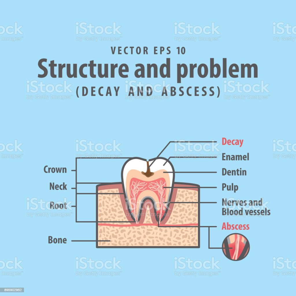 Decay and abscess crosssection structure inside tooth diagram and decay and abscess cross section structure inside tooth diagram and chart illustration vector on blue ccuart Image collections