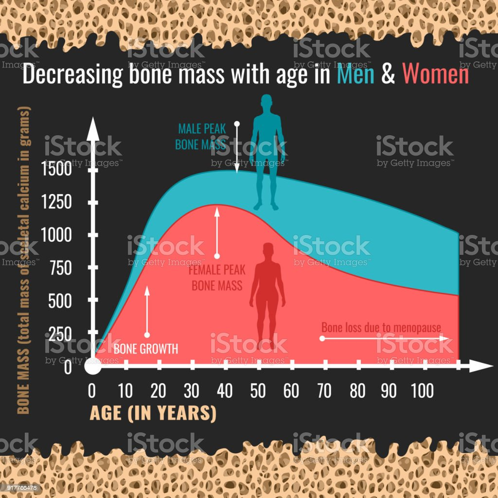 Ilustración de Disminución De Masa ósea y más banco de imágenes de ...