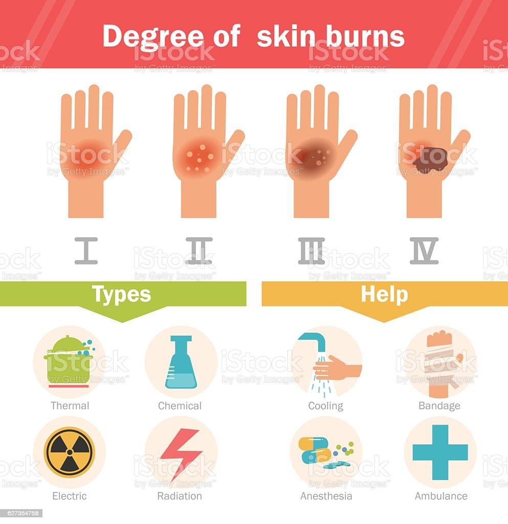 Degree of skin burns. Vector. vector art illustration