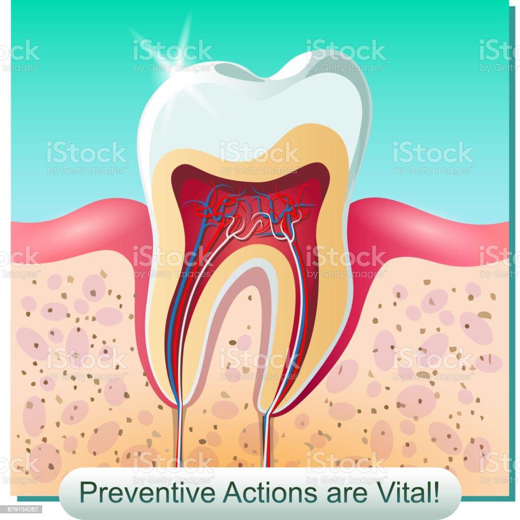 Ilustración de Anatomía Dental y más banco de imágenes de Absceso ...