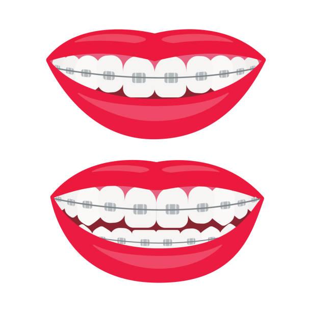 zahnspangen. lächeln mit zahnspangen. ausrichtung des bisses der zähne, richtiger biss der zähne. zahnkiefer mit zahnspangen. vektordarstellung auf weißem hintergrund - manschetten stock-grafiken, -clipart, -cartoons und -symbole