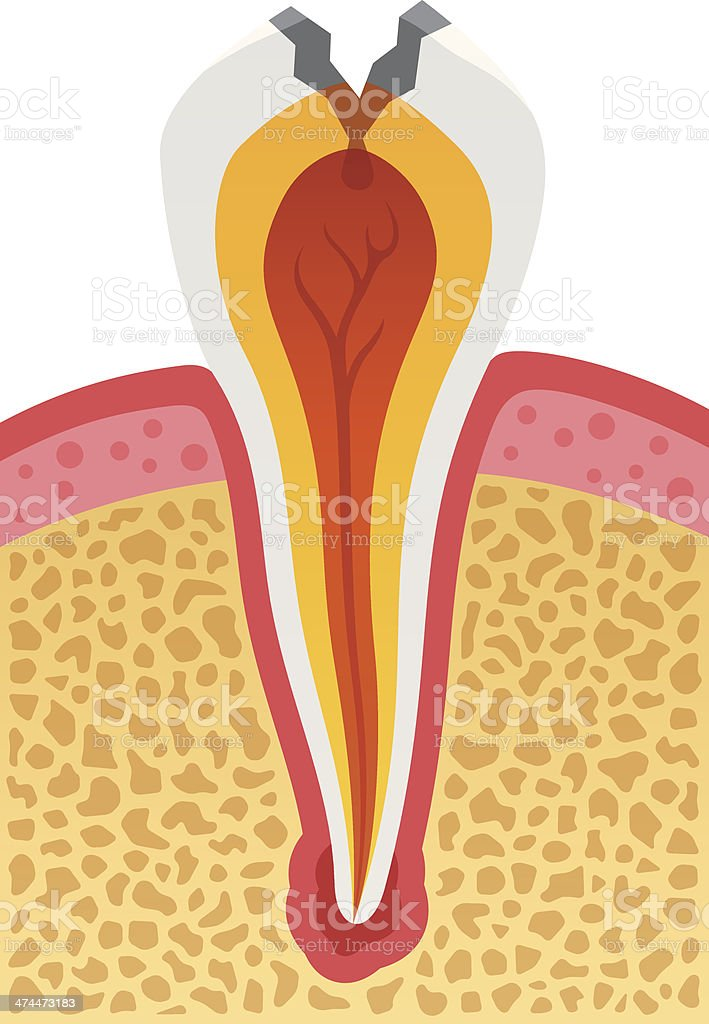 Dental Cavity royalty-free stock vector art