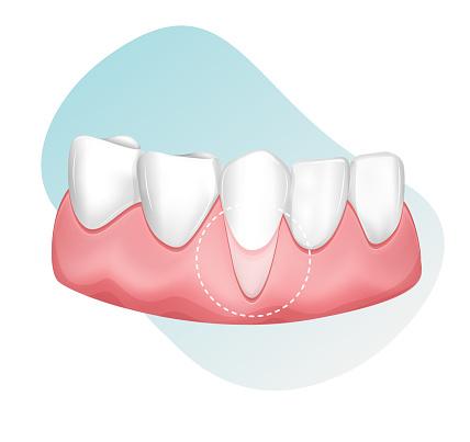 Dental Checkup for Receding Gums - stock illustration
